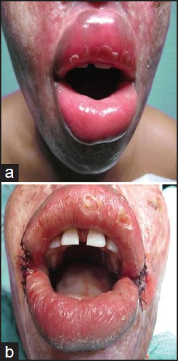 Bilateral Oral Commissurotomy And Buccal Mucosa Advancement Flaps In