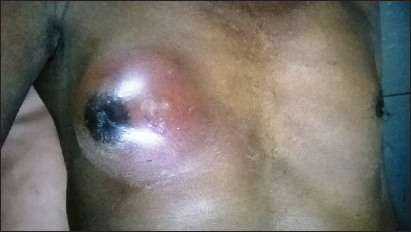 Infected epidermoid cyst masquerading as breast abscess in a