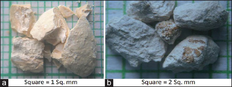 Figure 1: (a and b) Images of stones in two cases