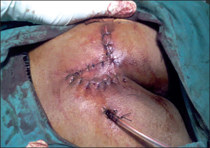Rhomboid excision with modified Limberg flap in the