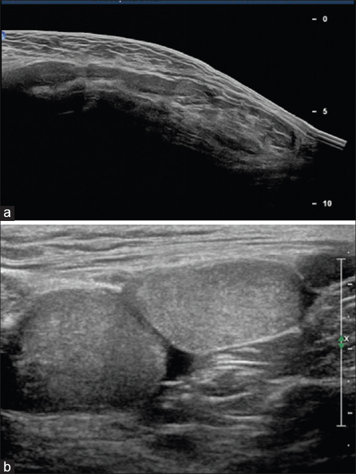 Figure 1: (a) Ultrasonography findings depicting hernia with omentum; (b) Ultrasonography findings depicting both testes in right hemiscrotum