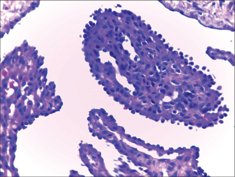 Figure 2: Papillary like structures in lined by hobnail cells in Dabska tumour a component of CHE