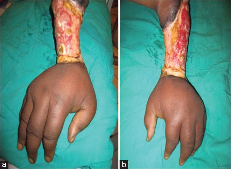 Figure 2: Bilateral circumferential ulcers of the forearms and non-pitting edema of the hands (puffy hand syndrome) (a) Right forearm and hand (b) Left forearm and han