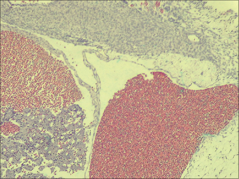 Figure 3 : (Estradiol E1097): section showing decidua, chorionic villi, and hemorrhage. H and E stain, Mag × 40