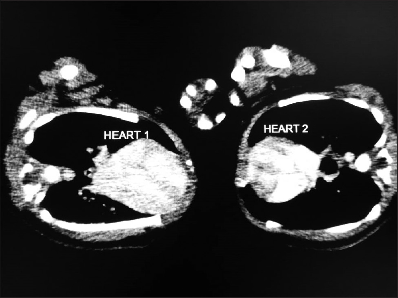 Figure 6: Axial CT image at the level of the heart showing clear distinction of the cardiovascular system